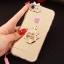 (025-979)เคสมือถือไอโฟน Case iPhone7/iPhone8 เคสนิ่มซิลิโคนใสลายหรูติดคริสตัล พร้อมแหวนเพชรวางโทรศัพท์ และสายคล้องคอถอดแยกสายได้ thumbnail 14